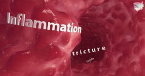In the Colon VR Review - Inflammation